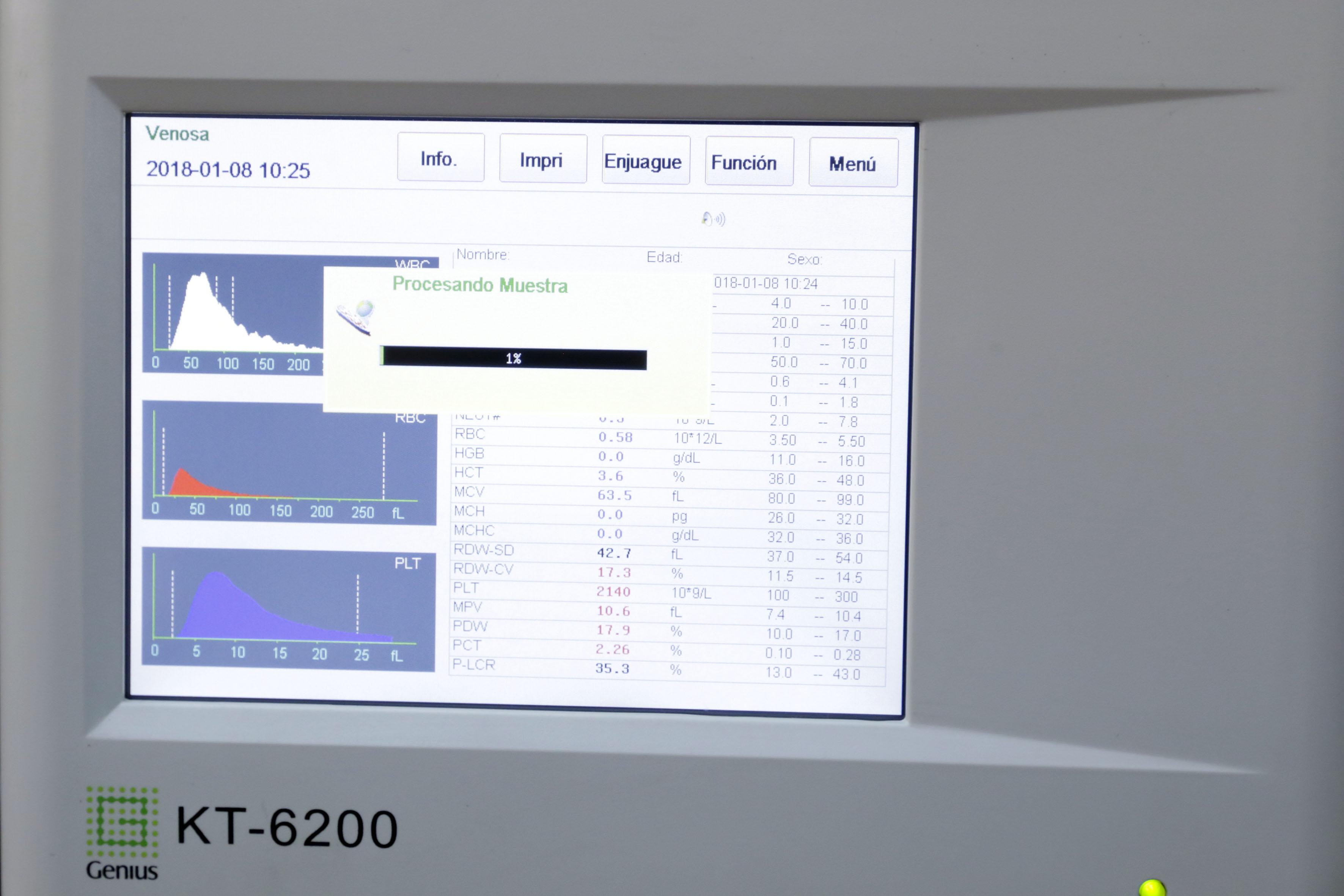 Datos de la investigación en el monitor de la computadora