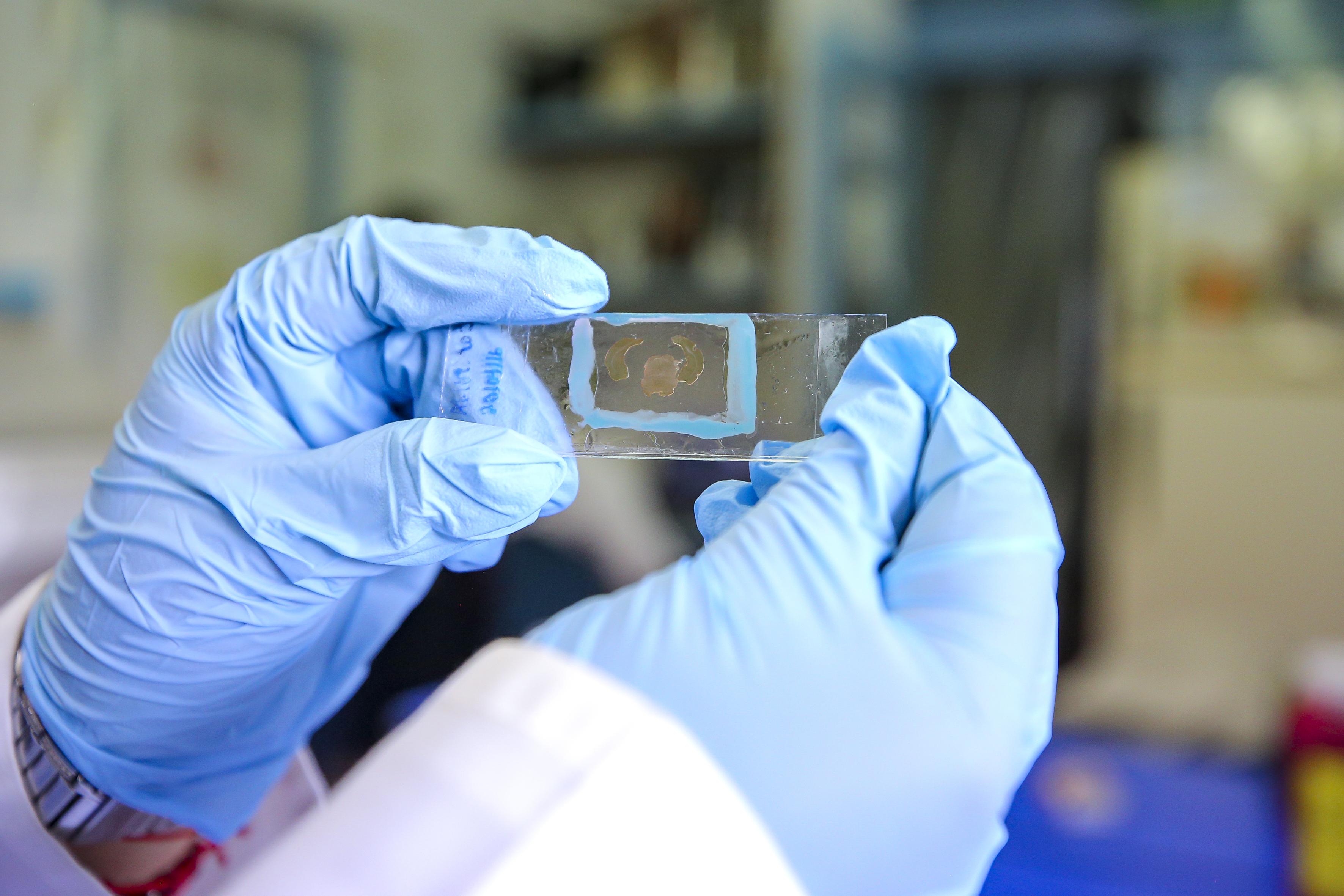 Laminilla de laboratorio sostenida por manos de un investigador