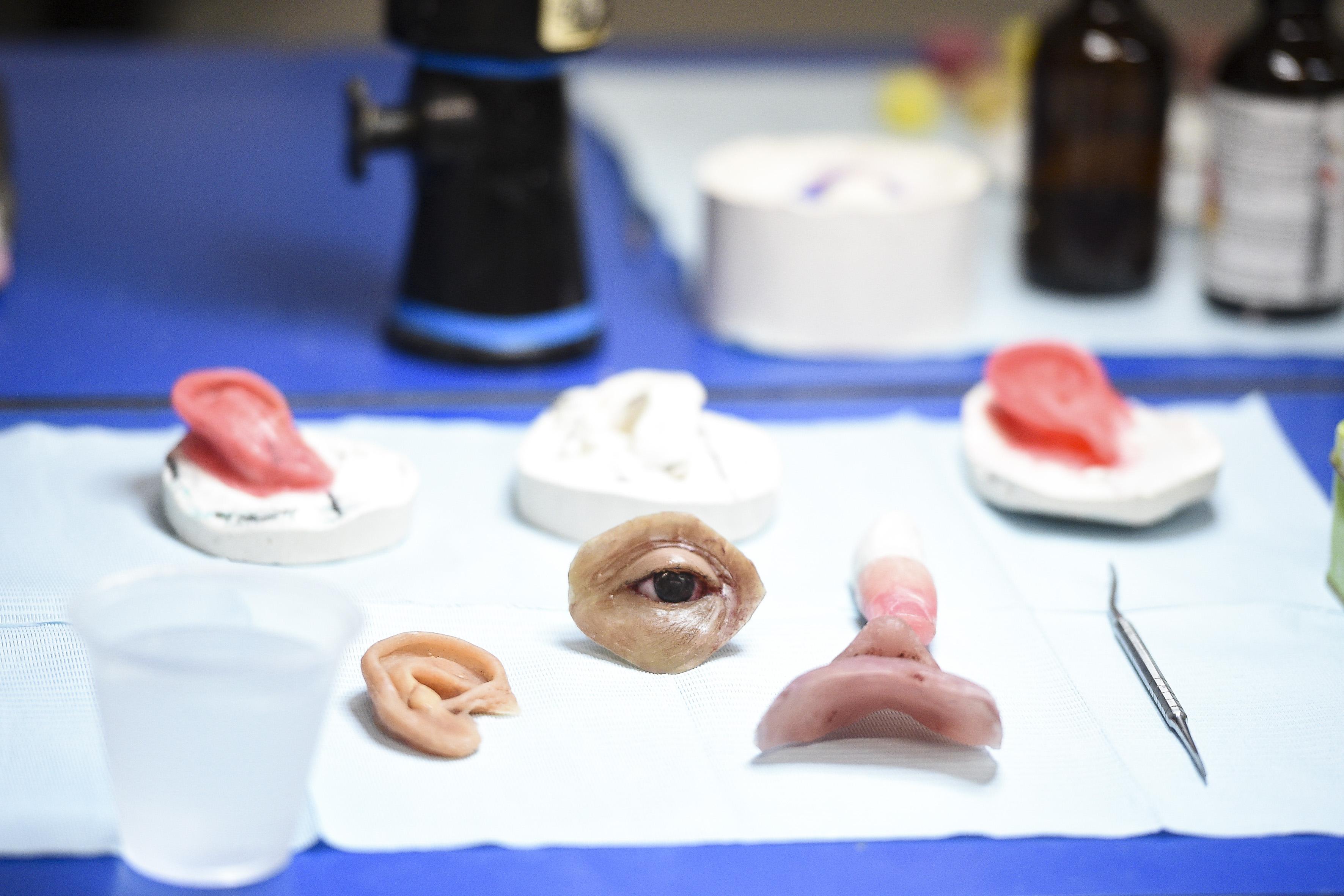 Prótesis en cera de orejas, nariz y ojos
