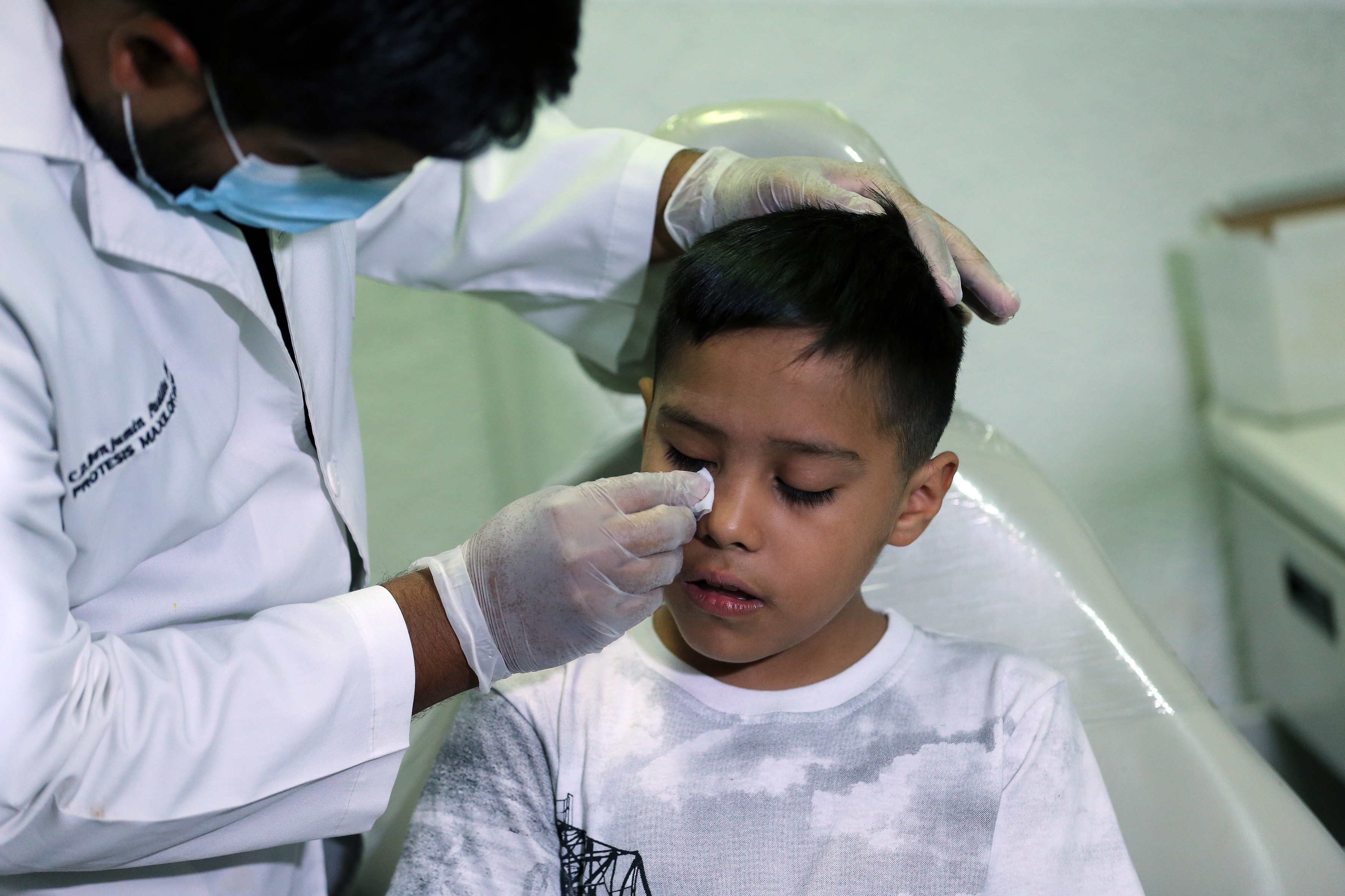 Médico especialista coloca prótesis ocular en ojo derecho del niño