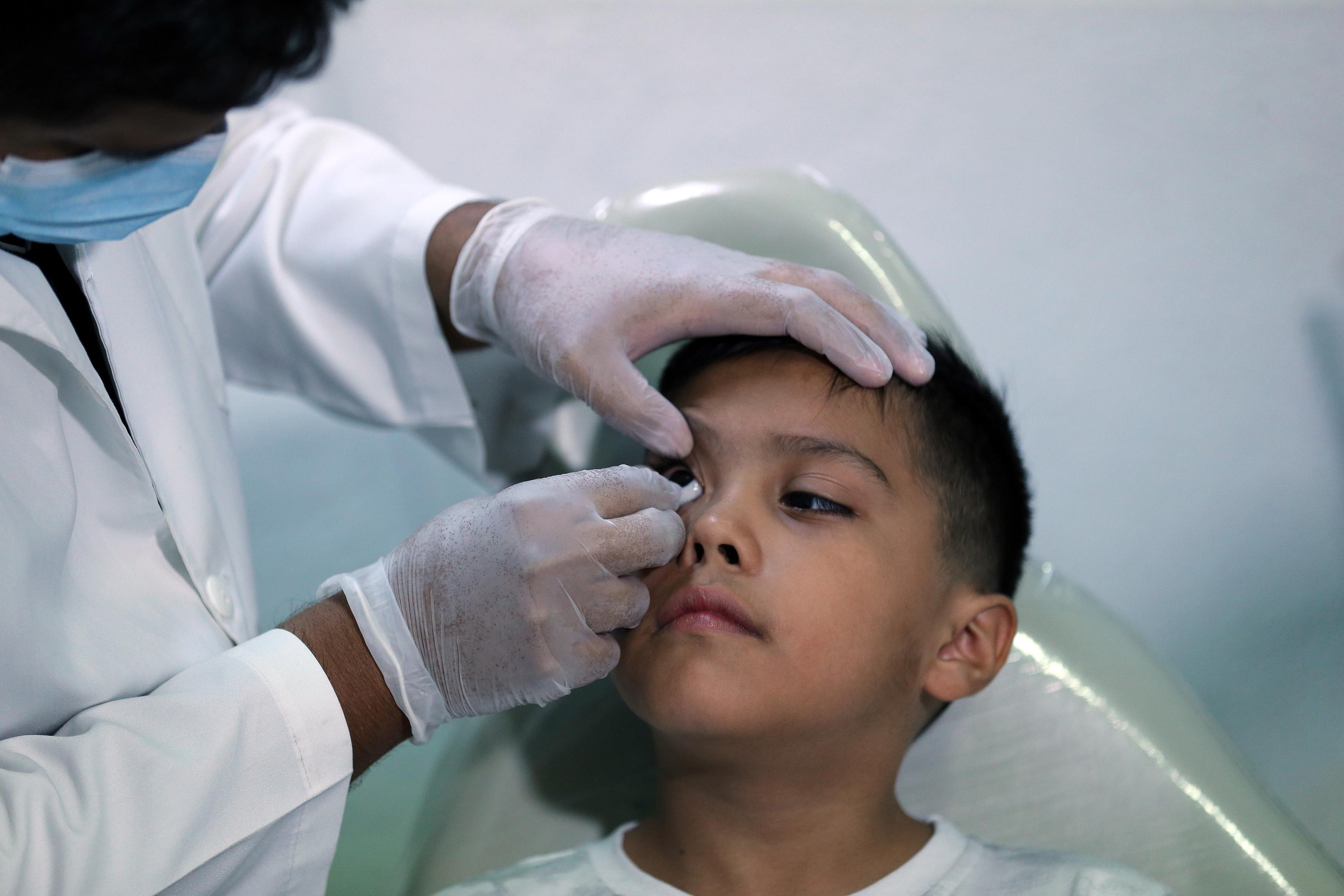 Médico especialista coloca prótesis ocular en el ojo derecho del niño